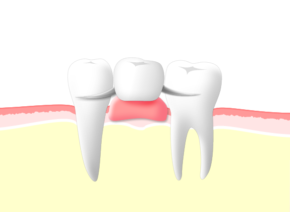 入れ歯のメリット
