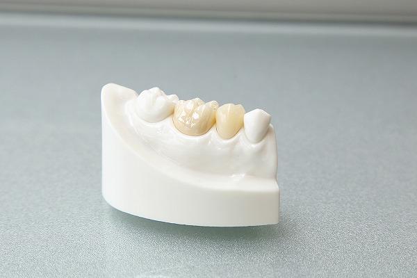 白い歯を入れたい!セラミック治療